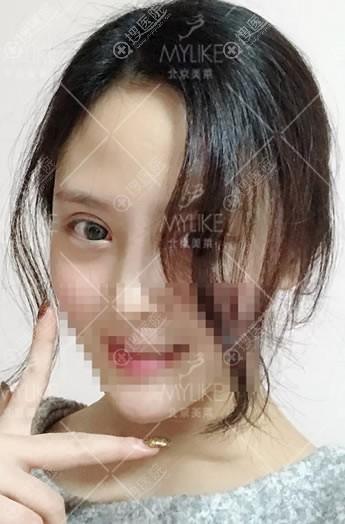 北京美莱割双眼皮案例15天效果