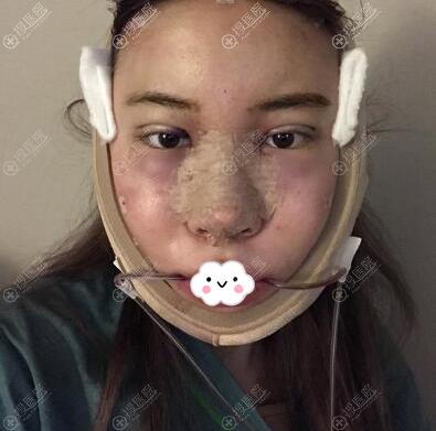 韩国NANA面部轮廓整形+眼鼻整形术后即刻