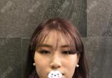 韩国NANA整形医院崔相録做轮廓三件套和眼鼻整形的恢复期图片