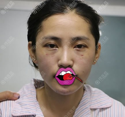 北京京民医院脂肪填充和隆下巴即刻效果
