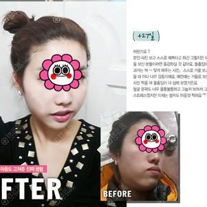 韩国菲斯莱茵双颚手术恢复一个月效果对比
