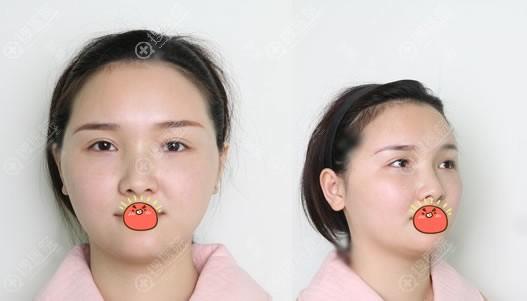 北京艺美做脂肪填充修复手术前
