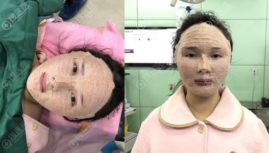 北京艺美王东自体脂肪修复案例