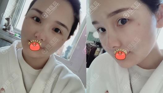 北京艺美自体脂肪修复案例3天效果