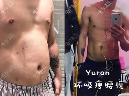 北京悦然腰腹部吸脂案例对比图
