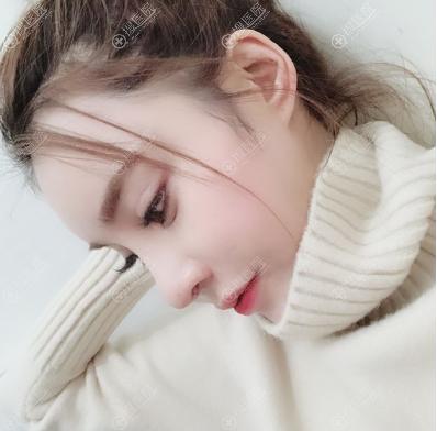 上海玫瑰赵延峰隆鼻案例术后15天效果图