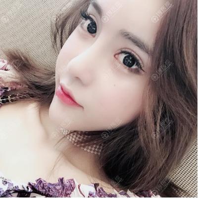 上海玫瑰赵延峰做的鼻子修复案例