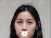 在深圳米兰柏找朱武根做了全面部脂肪填充后我的脸部轮廓都变了