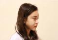 用我的隆鼻修复亲身经历来告诉你上海玫瑰赵延峰做鼻子怎么样
