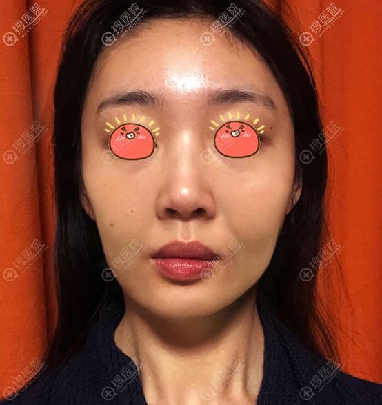 北京惠合嘉美医疗美容做线雕前