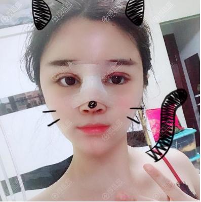 上海瑰康双眼皮隆鼻术后4天