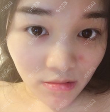在上海瑰康做眼睛鼻子前的照片