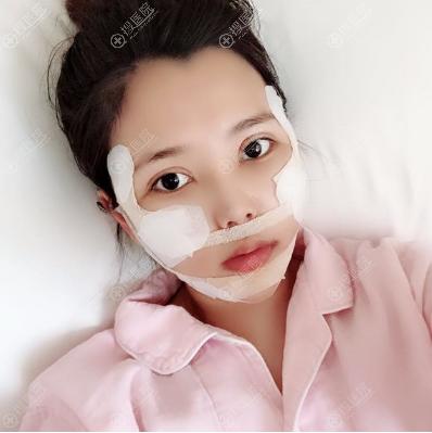 上海首尔丽格双颚+凸嘴矫正7天消肿