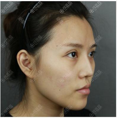 在上海首尔丽格做双颚和凸嘴矫正前的样子