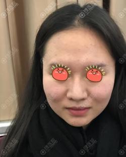 我的小V脸是通过在北京和美嘉做面部吸脂瘦脸得来的,花了好几万