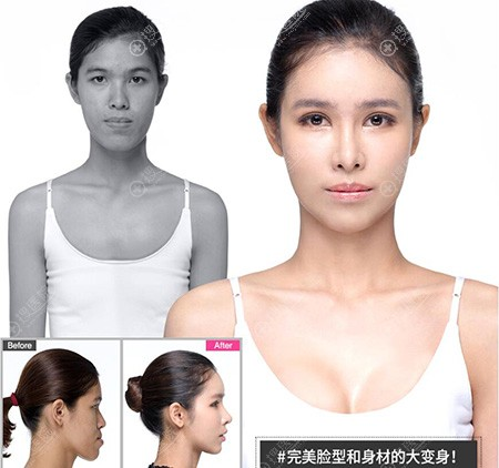 韩国DREAM梦想医生团队整体打造脸型和身材大变身