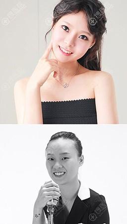 韩国DREAM梦想颧骨缩小效果对比