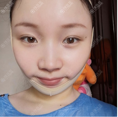 射频溶脂瘦脸术后第二天恢复期照片