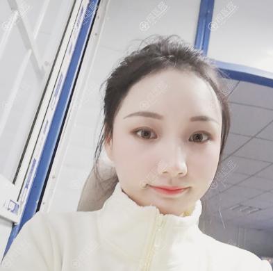 上海华美射频溶脂瘦脸半个月恢复很快
