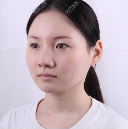 在上海华美做射频溶脂瘦脸前的照片