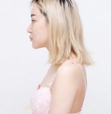 在上海美莱做隆胸手术前的平胸照片