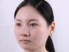 不想做面部吸脂就去上海华美找何斌做了射频溶脂瘦脸效果还不错