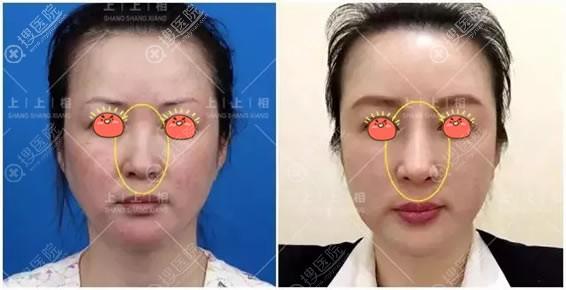 北京上上相自体脂肪隆鼻案例