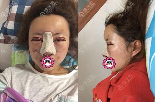 到韩国灰姑娘做完眼鼻手术后即刻