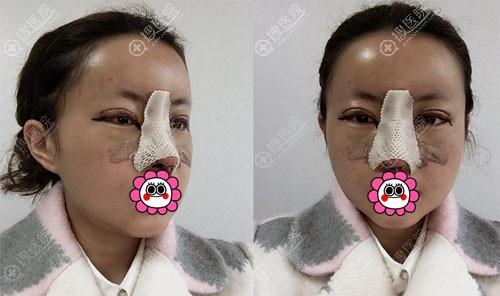 眼鼻综合整形恢复后6天