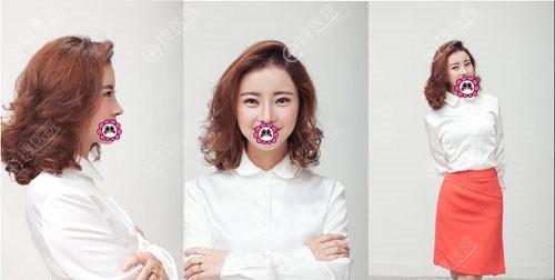 韩国新帝瑞娜郑钟必做的眼鼻综合效果怎么样?