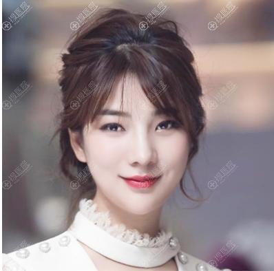 上海美莱王琳医生做的肋软骨鼻综合隆鼻案例