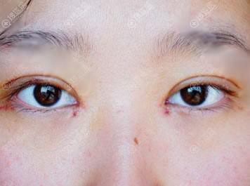 做完9mm大宽双眼皮6天恢复图片
