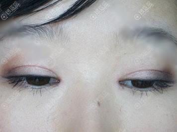全切双眼皮9mm恢复14天宽度