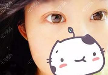 曲靖靖美杨富春做双眼皮案例