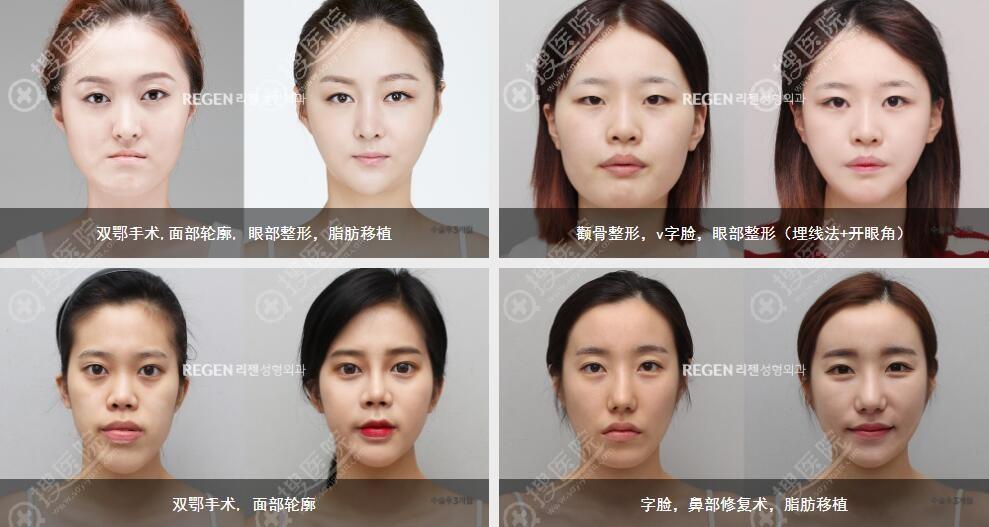 韩国丽珍医生团队案例效果对比