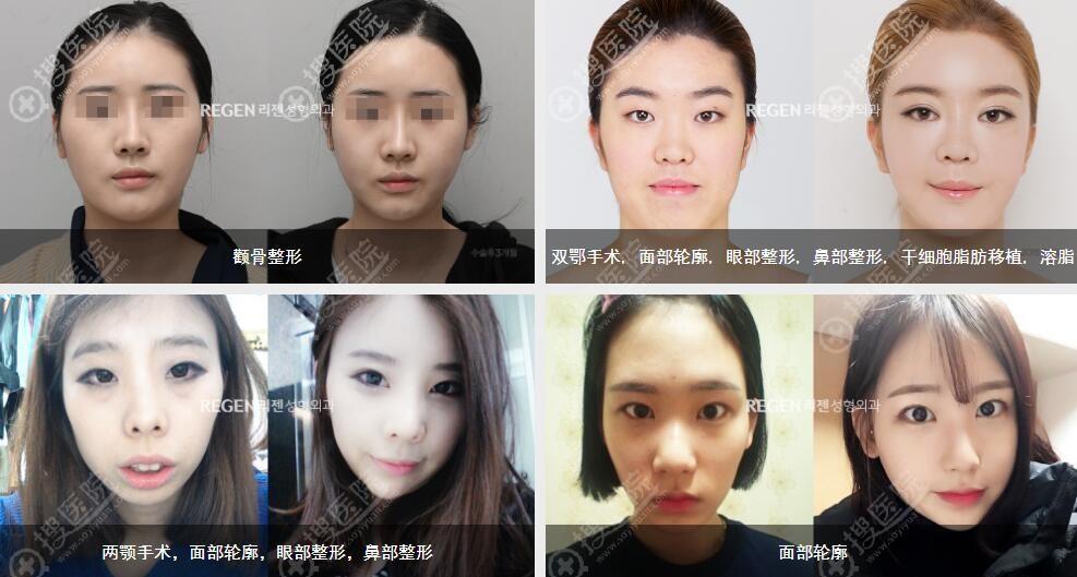 韩国丽珍医生团队蜕变前后案例