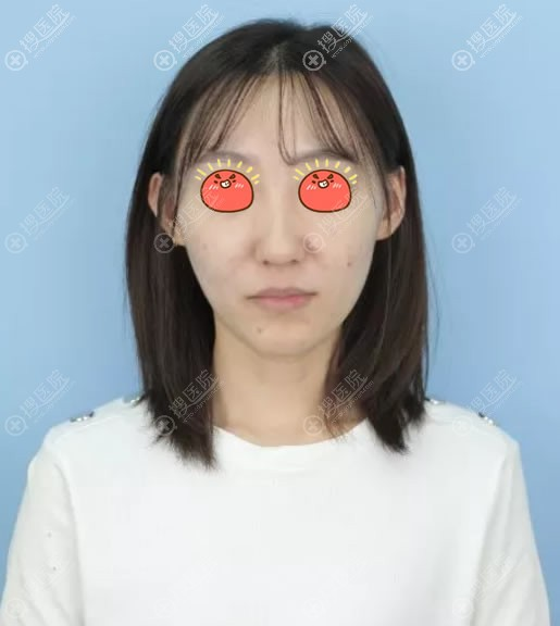 在北京艺兴整形医院做隆鼻前