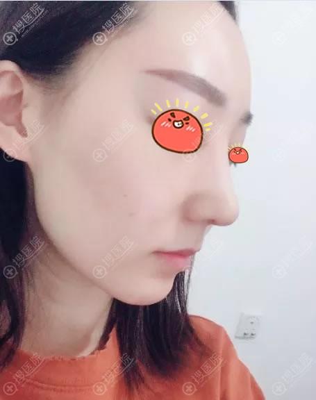 北京艺兴薛轶群隆鼻案例7天效果