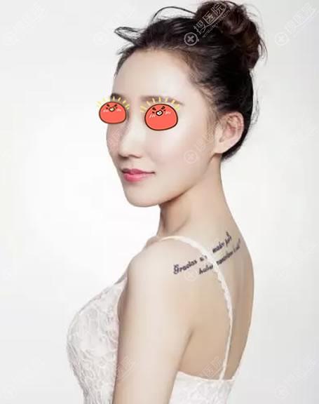 北京艺星薛轶群做隆鼻手术案例