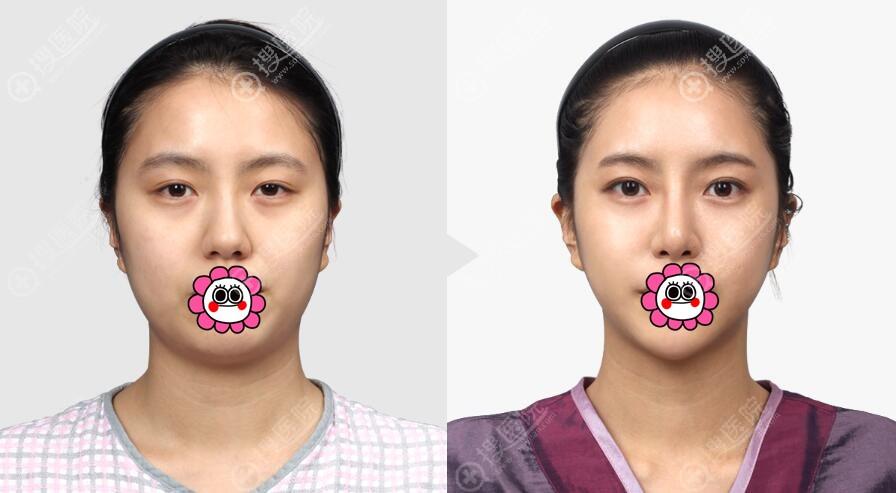 韩国TL整形打造V脸案例一