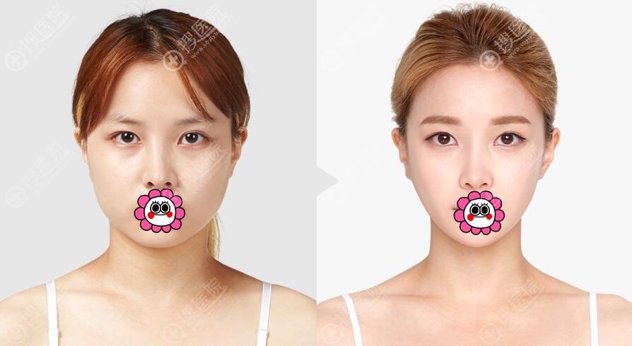 韩国TL整形打造V脸案例二