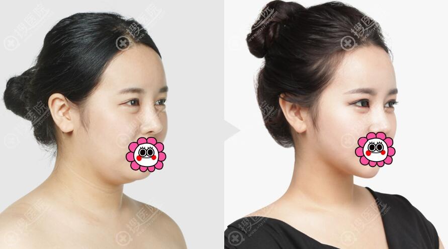 韩国TL整形打造V脸案例三