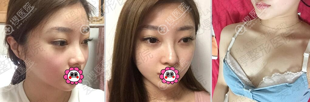 到韩国爱婷做整形前的鼻部和胸部情况