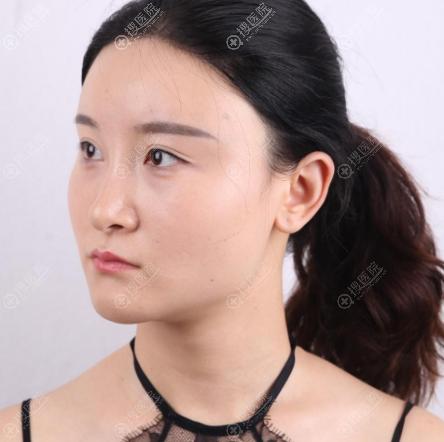 在上海华美做下颌角颧骨术前照片