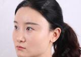 公开我花7万元找上海华美李志海做下颌角加颧弓降低的亲身经历