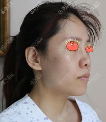 在北京凯润婷史三八做鼻子前