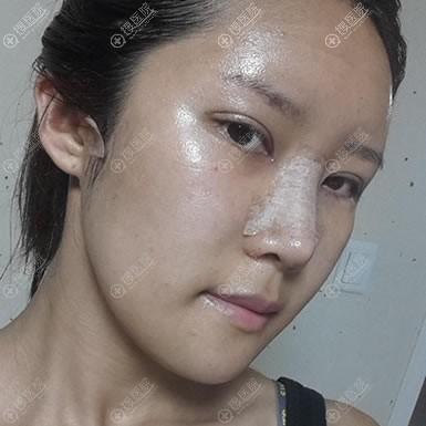 韩国原辰下巴截骨改脸型案例