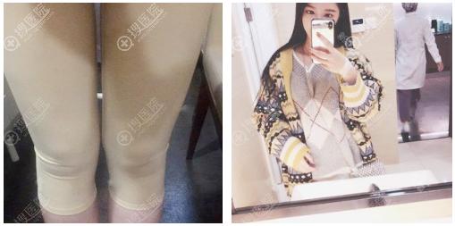 上海玫瑰大腿吸脂案例