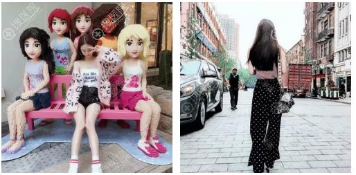 上海玫瑰大腿环吸术后一个月