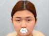 内向的我找深圳希思医院李俊做了眼综合和膨体隆下巴后变自信了
